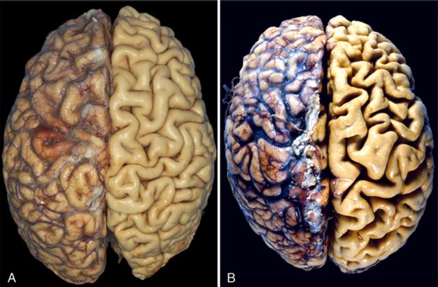 Сенильные психозы: виды и признаки