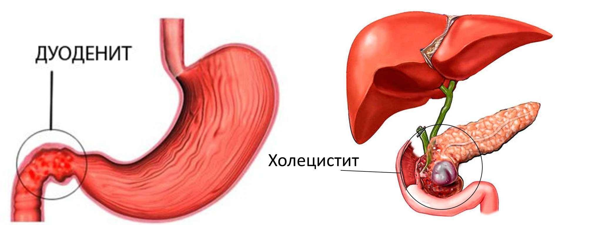 симптомы при холецистите и панкреатите