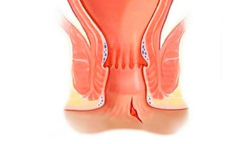 Как происходит лечение свищей при геморрое?