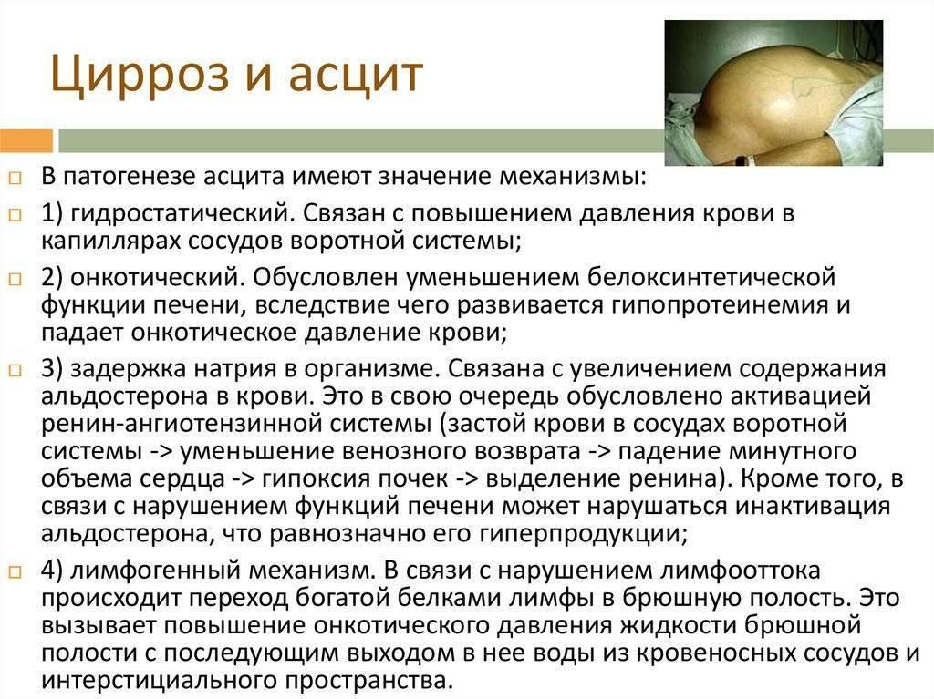 Асцит при циррозе печени: сколько живут такие пациенты
