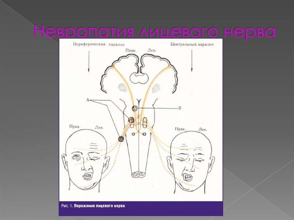 Неврит лицевого нерва: симптомы, лечение