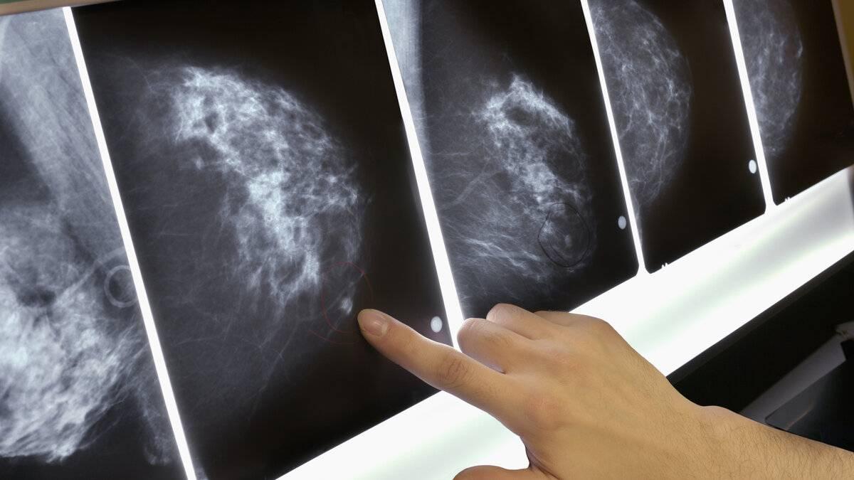 результаты маммографии молочных желез расшифровка