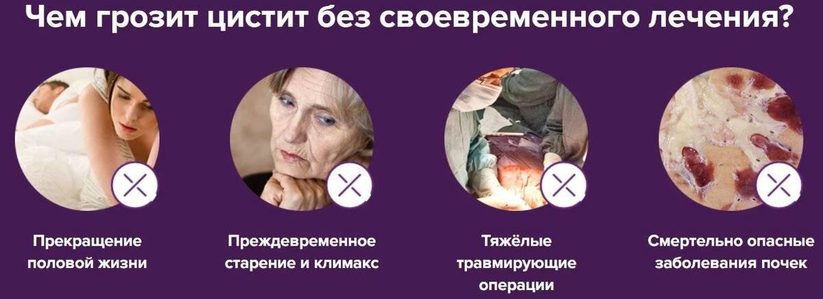 Цистит у женщин — симптомы и лечение в домашних условиях, препараты