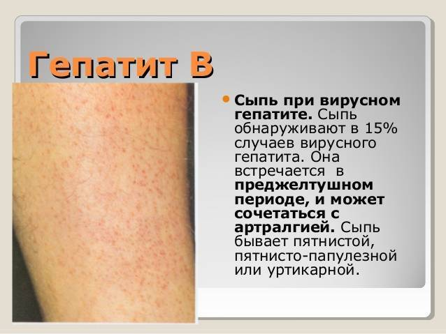 Как лечить кожный зуд при заболевании печени??