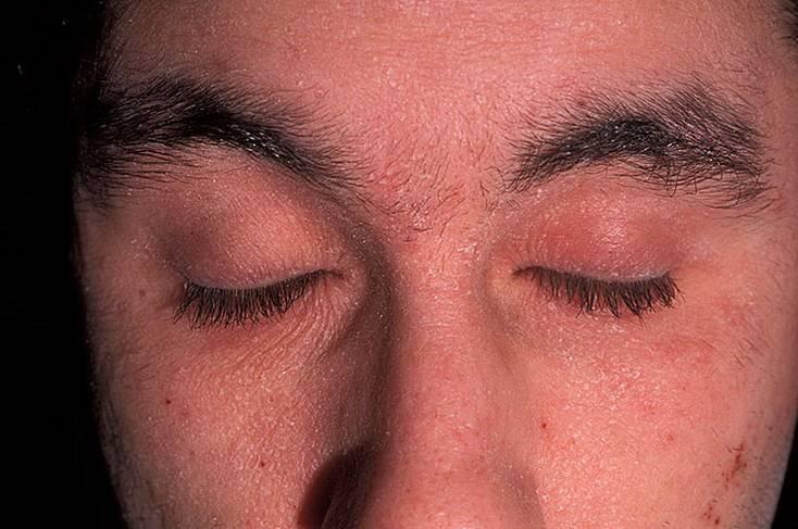 нейродермит на шее