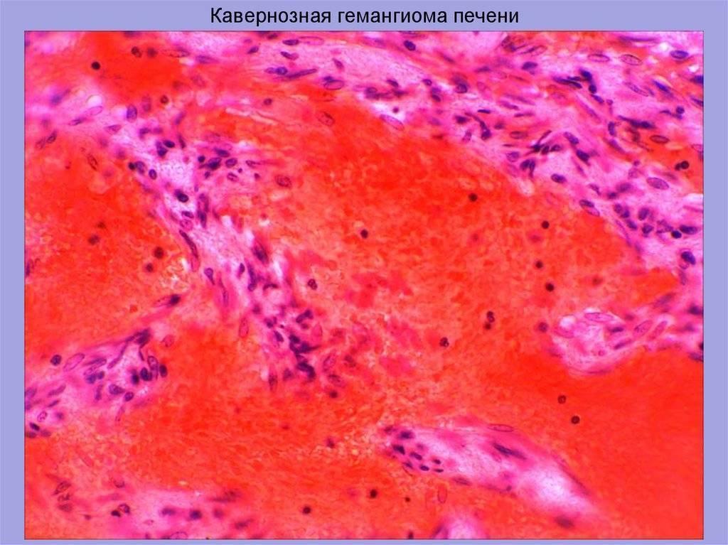 Гемангиома печени: причины и лечение