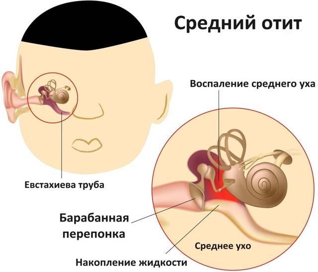 Почему идет кровь из ушей и что с этим делать?