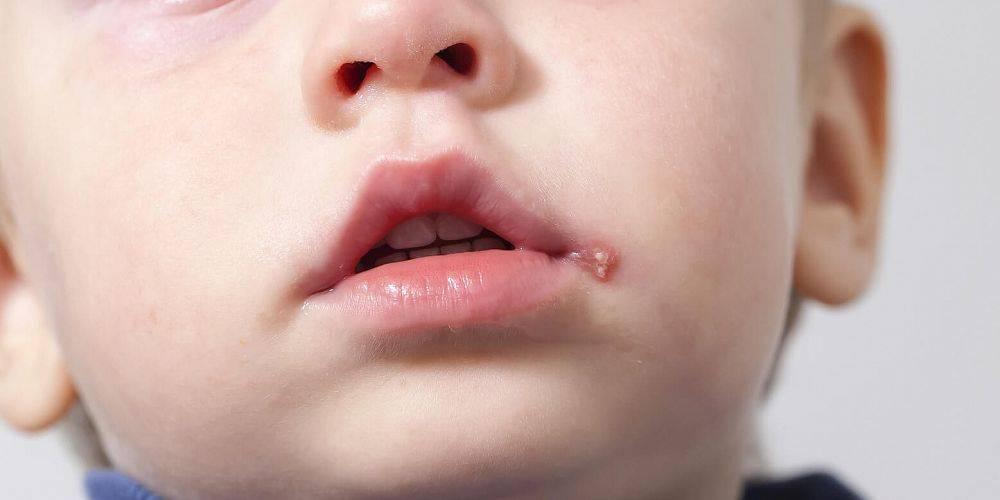 Подробная клиническая картина герпеса на лице у ребёнка — как выглядит и чем лечить