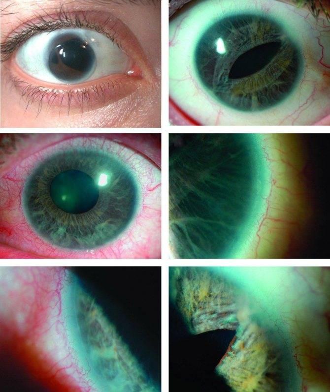 Причины и лечение вторичной глаукомы