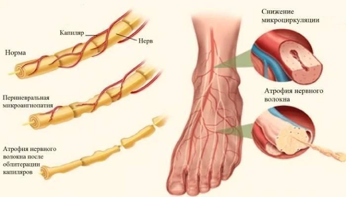 Чем грозит невропатия бедренного нерва
