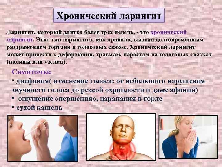 как лечить острый ларингит