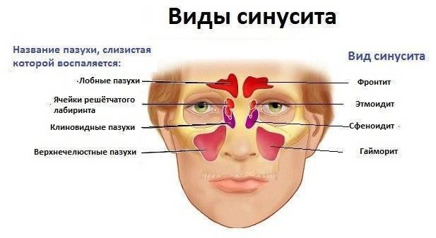 Симптомы гайморита у взрослых: