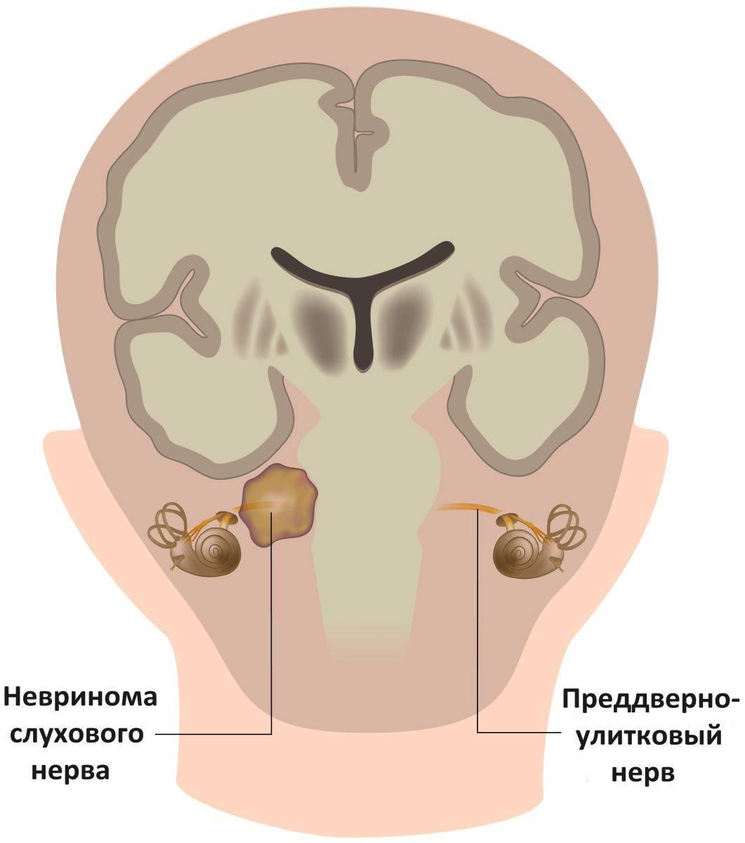 лечение невриномы слухового нерва без операции