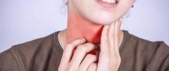 Болит горло – причины, что делать, чем лечить, лекарства и народные средства
