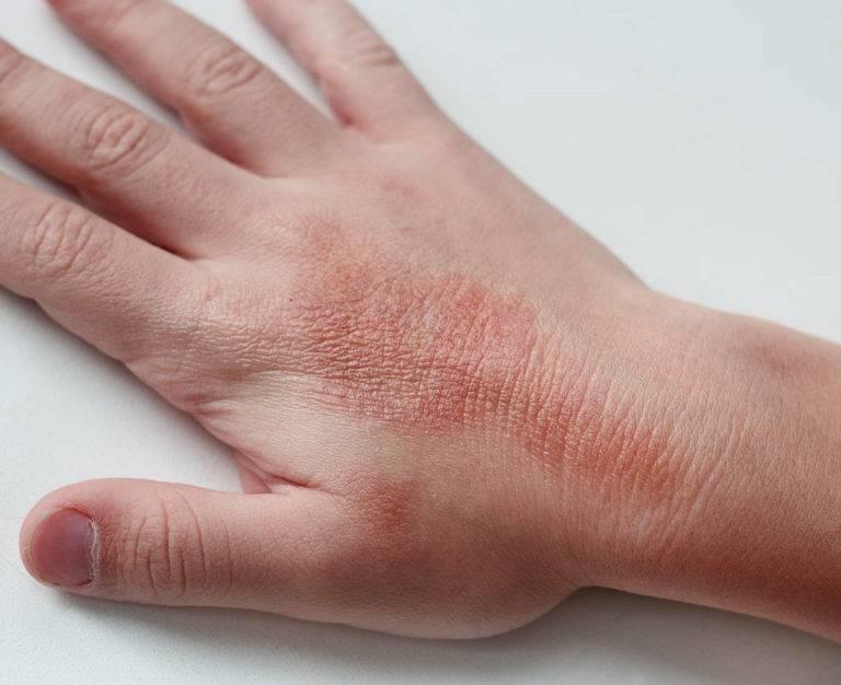 Контактный дерматит на ладошках у детей