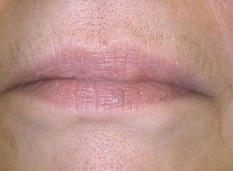 Дерматит на губах как лечить