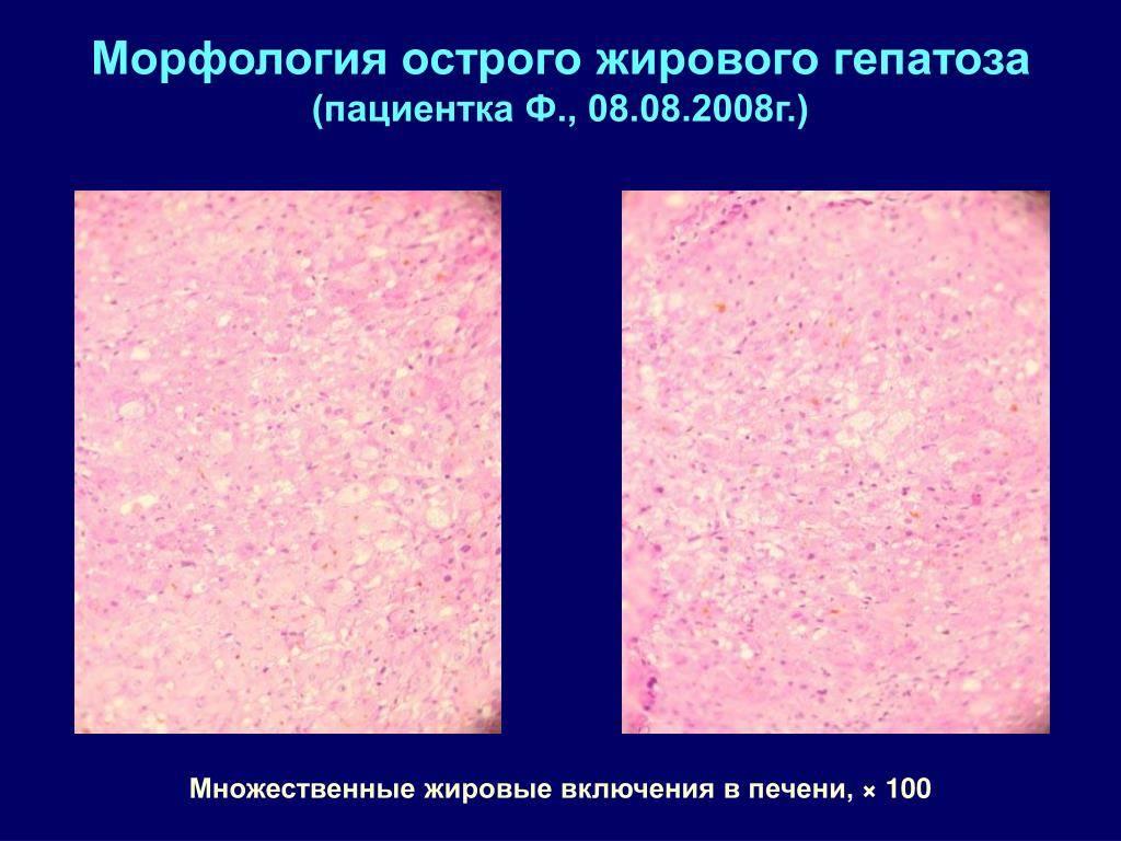 Жировой гепатоз (жировая дистрофия печени ) беременных - эрекция