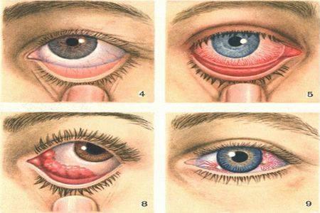 Аденовирусный кератоконъюнктивит — патогенез, признаки и лечение