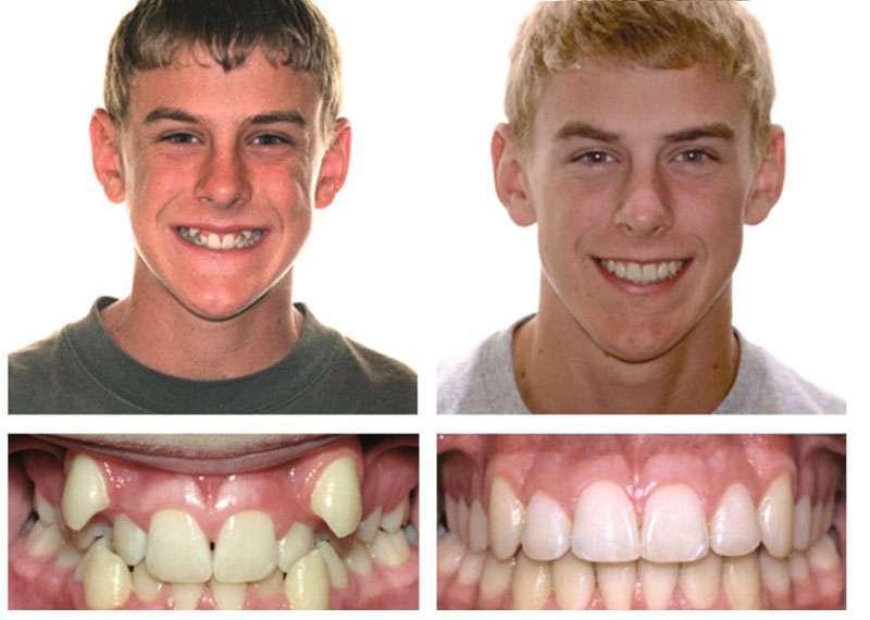 Как исправить кривые зубы у взрослых: советы специалистов