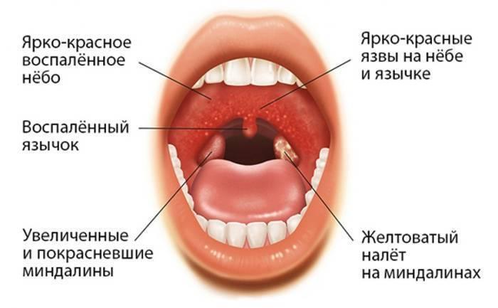Ангина – симптомы, виды, первые признаки ангины, осложнения, последствия