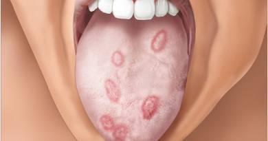 Стрептококковая ангина