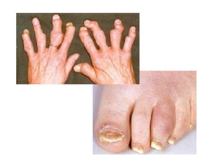 Ревматоидный и псориатический артрит: в чем отличия?