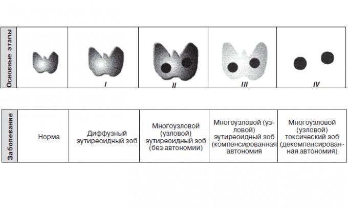 как лечить узловой зоб щитовидной железы