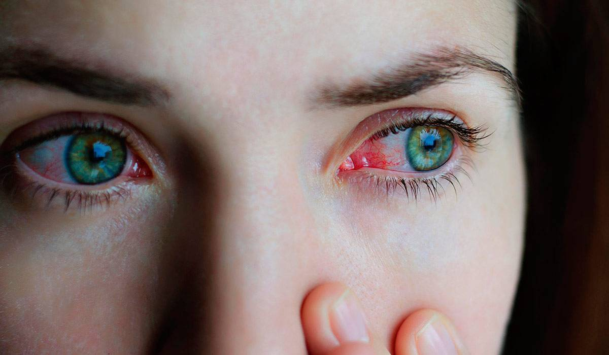 после линз глаза красные и болят