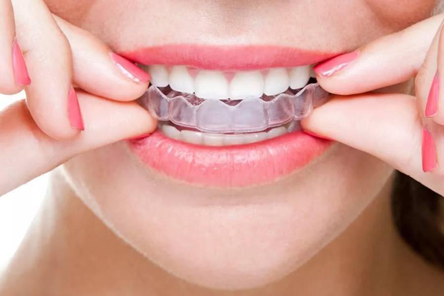 Как выровнять передние и жевательные зубы без брекетов у детей и взрослых