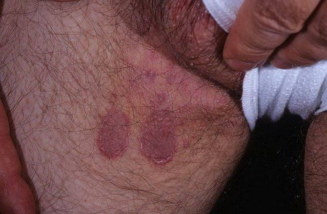контактный дерматит паха