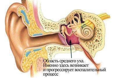 Заложенность уха при отите как долго длится