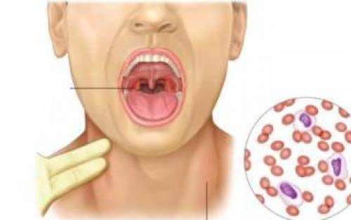 Увеличенные миндалины без температуры