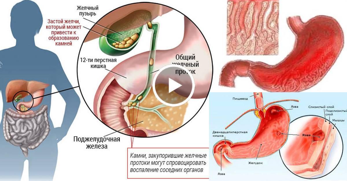 Симптомы и варианты лечения холецистита у мужчин