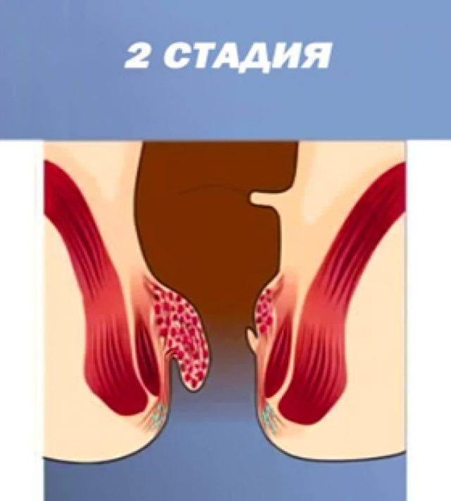 лечение геморроя 2 степени