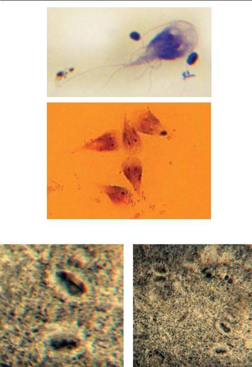 Что такое лямблии, цисты: как выглядят, как избавиться навсегда, симптомы