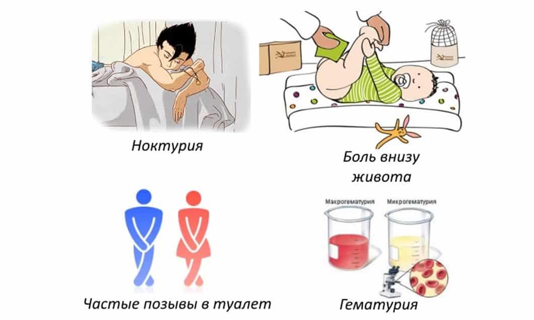 Признаки, симптомы и лечение цистита у детей
