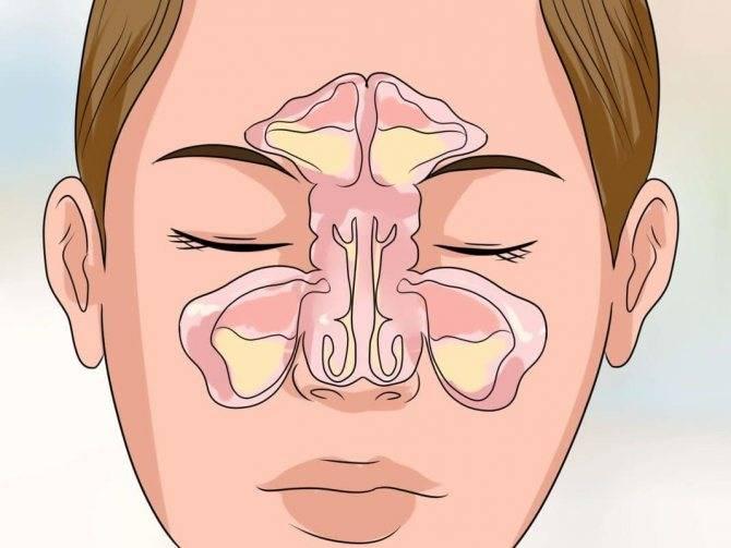 Воспалились пазухи носа – чем лечить воспаление носовых при гайморите