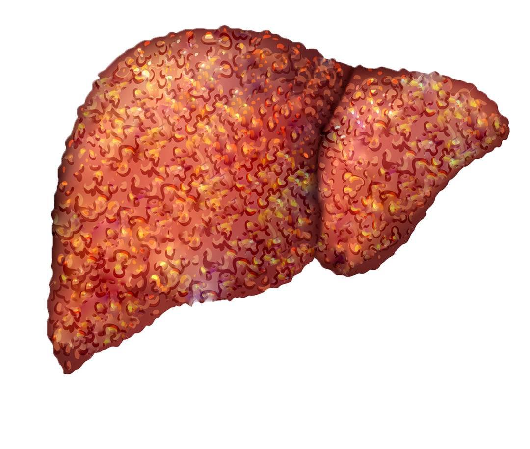 реактивный гепатит симптомы