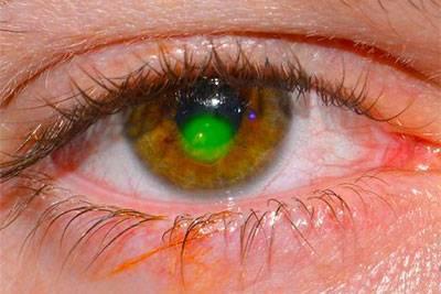 Герпес глаза: симптомы, диагноз и лечение
