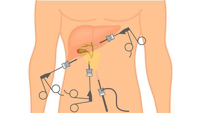 Лапароскопическая холецистэктомия желчного пузыря