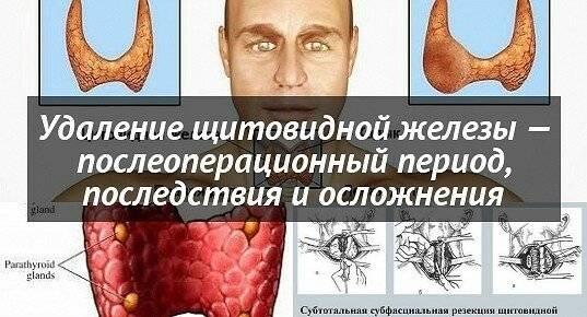 Восстановление после удаления щитовидной железы у мужчин