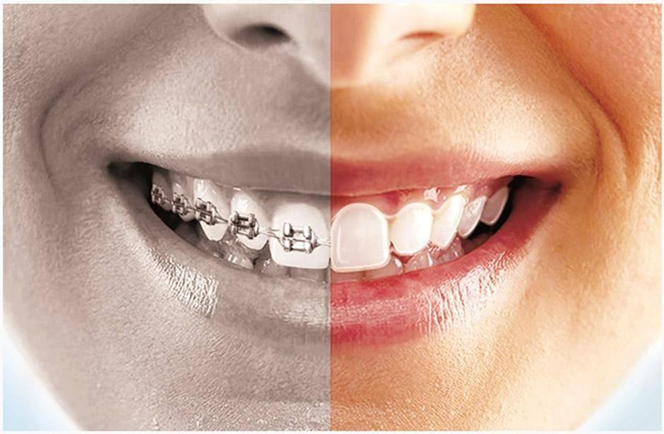 что такое элайнеры для зубов