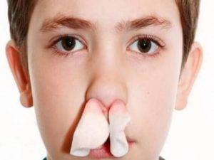 ночью течет кровь из носа у ребенка