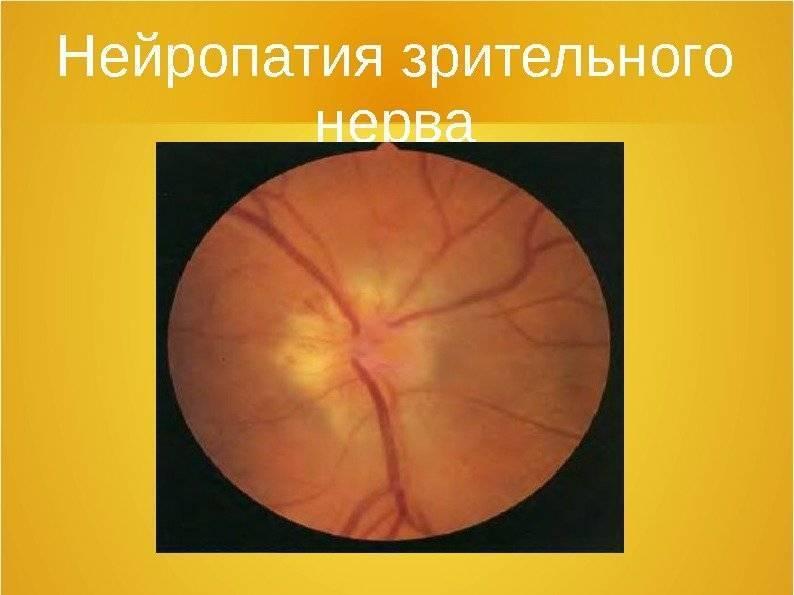 Передняя ишемическая нейропатия, главный офтальмологический портал vseozrenii