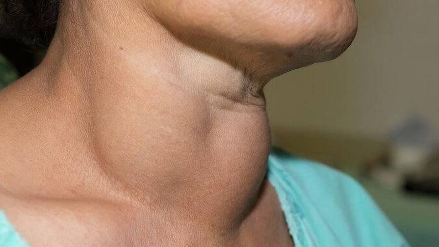 щитовидная железа рак симптомы у женщин