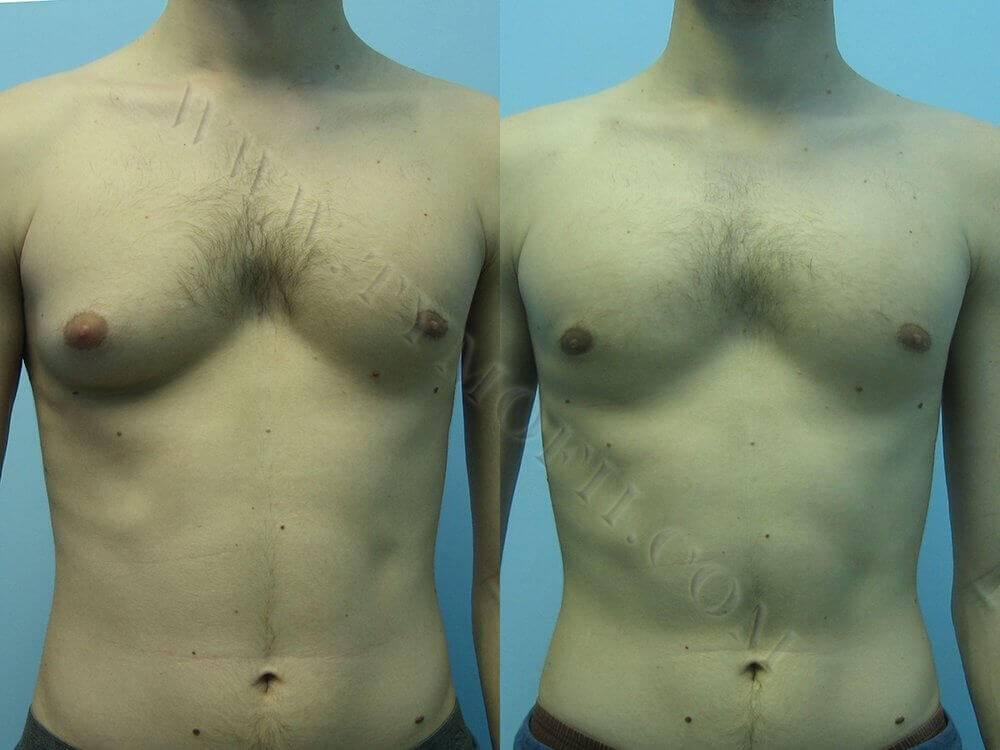 удаление гинекомастии у мужчин