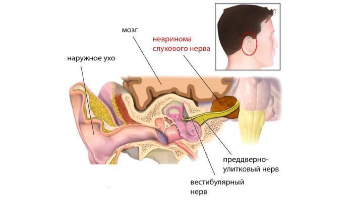 Причины появления шума в ушах и голове (тиннитуса)
