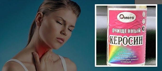 Лечение  горла керосином..быть или небыть? - запись пользователя дикий @нгел (id1161901) в сообществе семейное здоровье в категории хронические заболевания - babyblog.ru