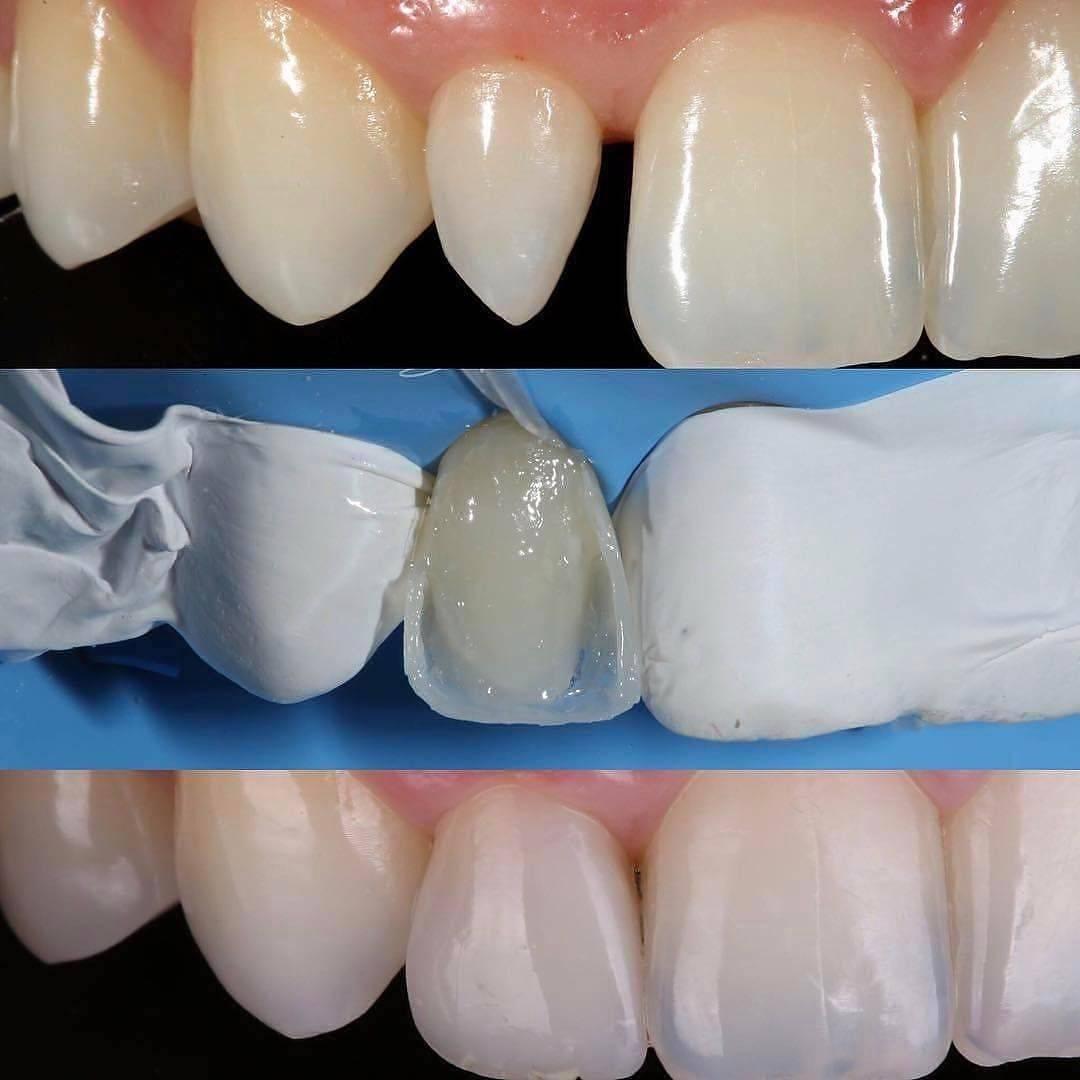 Художественная реставрация передних зубов — эстетическое восстановление резцов