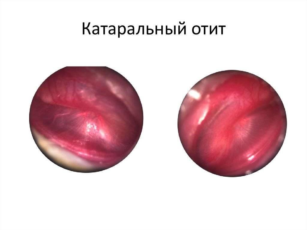 симптомы при катаральном отите